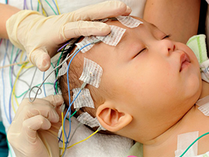 EEG (ELECTROENCEPHALOGRAM) AND VIDEO-EEG